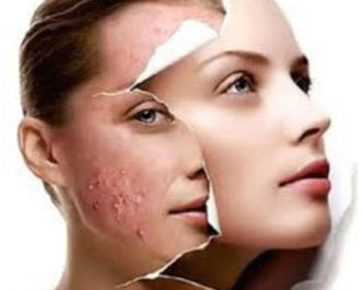 acne treatment glasgow