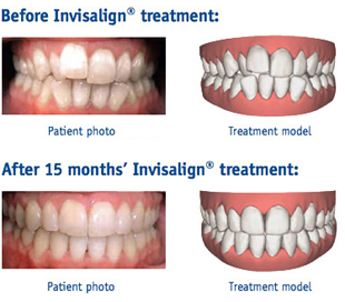 before and after Invisalign invisible braces